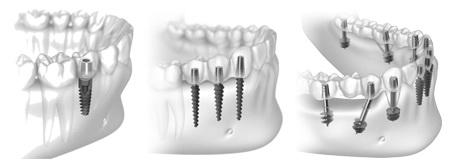 Отзывы об экспресс-имплантации зубов