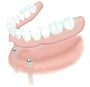 Мини-имплантация зубов